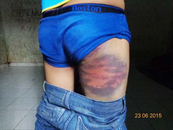 Los jóvenes habrían recibido maltratos físicos en dependencias de la FELCC. (Foto: El Chaco)