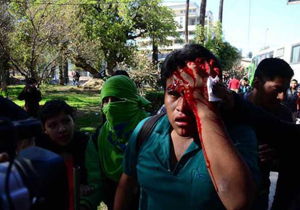 El universitario Jhon Copaga es auxiliado después de ser herido con una granada de gas lacrimógeno, ayer. (Foto: Diego Cartagena - Los Tiempos)