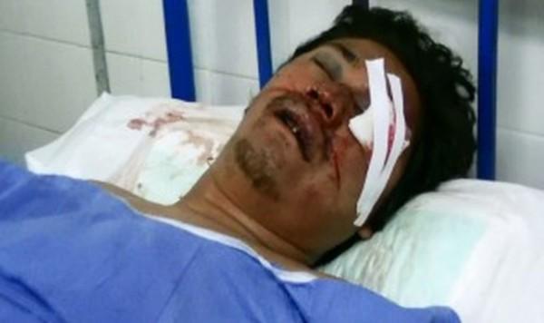 Ariel Sebastián Vaca, fue atacado por una patota en un barrio de Tartagal. (Foto: El Tribuno)