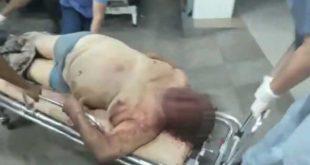SANTA CRUZ: ENFRENTAMIENTO DEJA UN REO MUERTO Y TRES HERIDOS EN LA CÁRCEL DE PALMASOLA